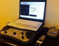 Sierra Ascent EMG/NCV System